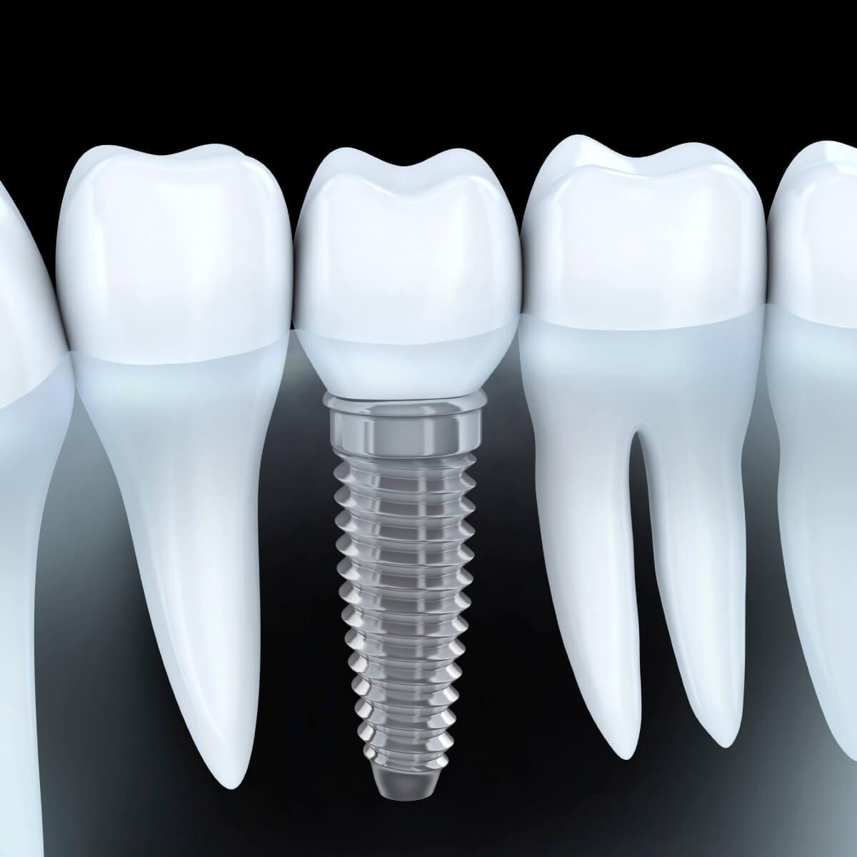 Cấy Ghép Implant tại PHÒNG KHÁM CHUYÊN KHOA RĂNG HÀM MẶT DR.LEE