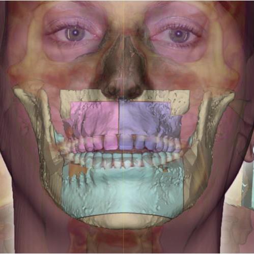 Phần mềm phẫu thuật 3D tại PHÒNG KHÁM CHUYÊN KHOA RĂNG HÀM MẶT DR.LEE
