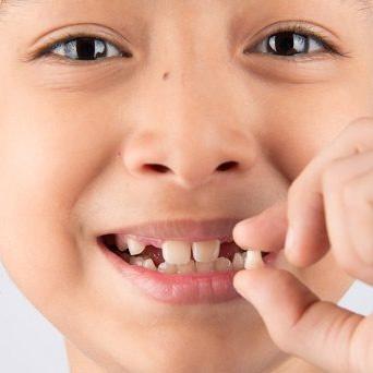 Hàn – trám hỗ trợ điều trị sâu răng