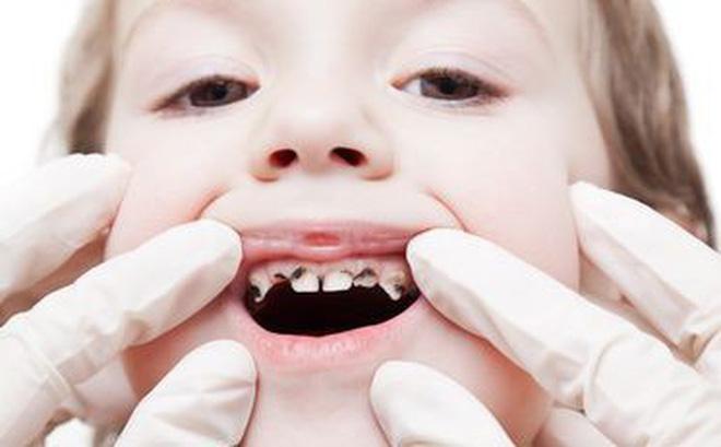 Điều trị tủy răng trẻ em