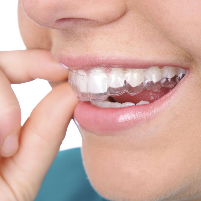 Đối tượng niềng răng