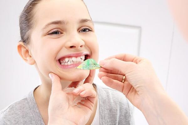 Làm sạch răng định kỳ