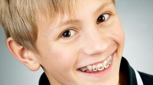 Dịch vụ chỉnh nha – niềng răng