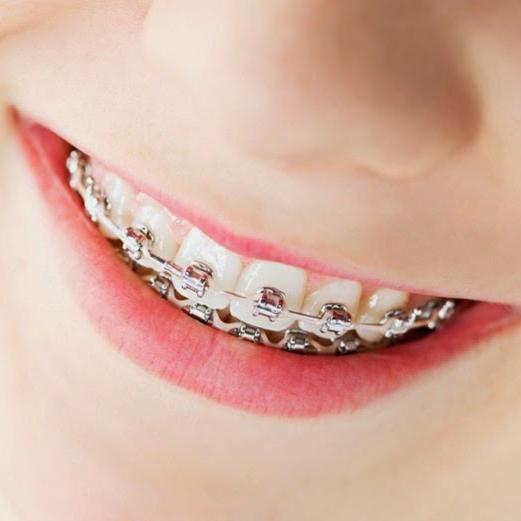 Một số nhược điểm của niềng răng mắc cài kim loại tự đóng: