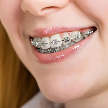 Niềng răng mắc cài kim loại tự đóng/tự khóa