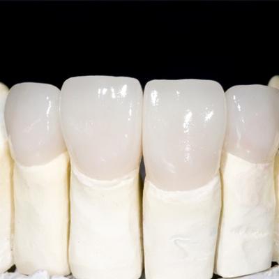 Những trường hợp có thể sử dụng Răng toàn sứ Zirconia